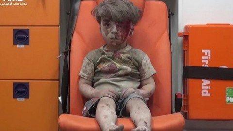 Aleppo, il bambino in ambulanza diventa il simbolo dell'orrore della guerra in Siria